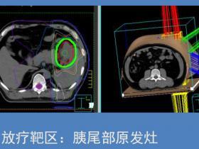 【病例解读】个体化化疗联合放疗使晚期胰腺神经内分泌癌获得完全缓解