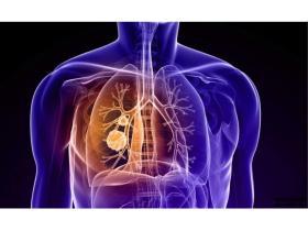 治疗肺癌的新型分子靶向药物招募患者