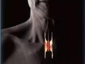 追求食管癌治疗的完美与极致