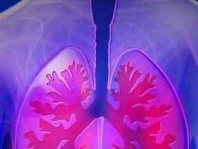 晚期肺癌有效个案:新抗原纳米疫苗为基础的综合免疫治疗+放疗